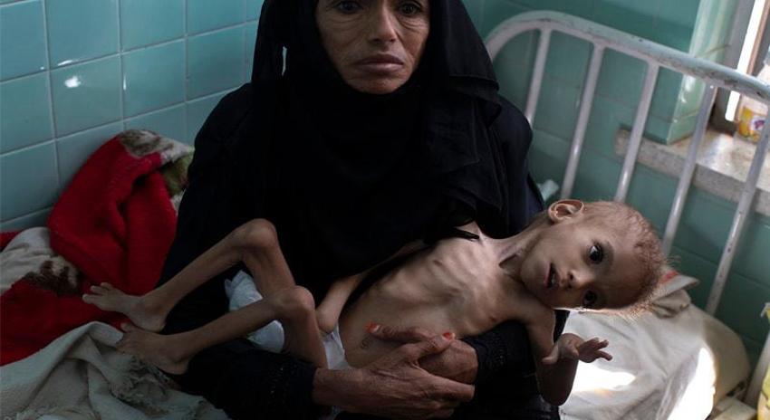 Photo of فیس بک نے قحط کا شکار یمنی بچوں کی تصاویری پوسٹس ہٹادیں