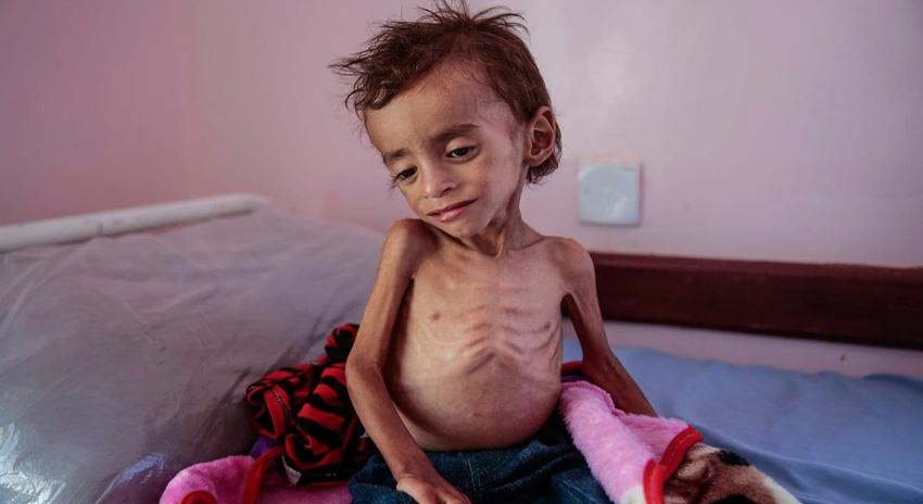 Photo of یمن بچوں کی مقتل گاہ، 85 ہزار بچے بھوک اور بیماری سے زندگی ہار چکے