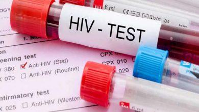 Photo of ملک بھر میں ایچ آئی وی ایڈز کے مریضوں کی تعداد 23 ہزار757 ہے: وزارت صحت