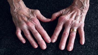 Photo of گٹھیا کی ایک دوا 'کرسٹیکسا' بھی دی جائے تو انہیں فائدہ ہوتا ہے
